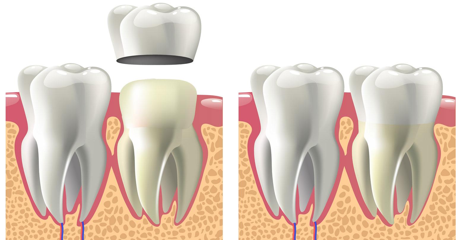dental crown banner