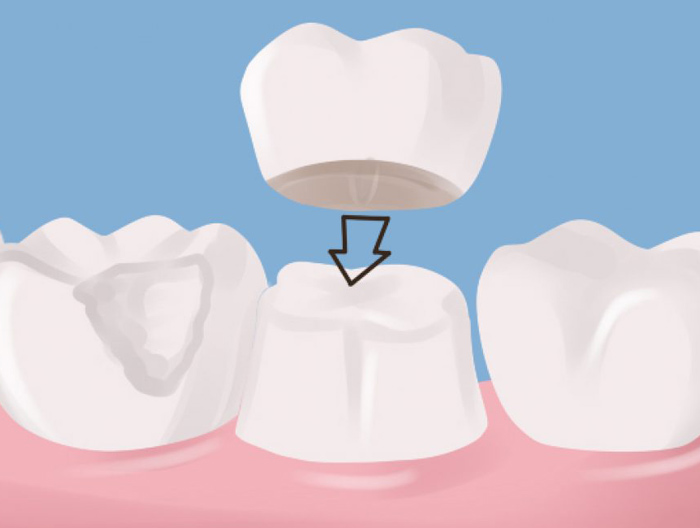 how to care dental bridges south croydon