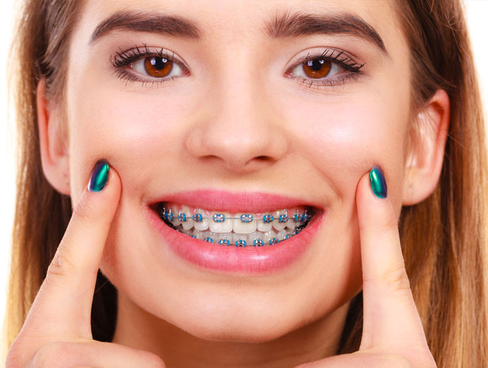 adult braces south croydon