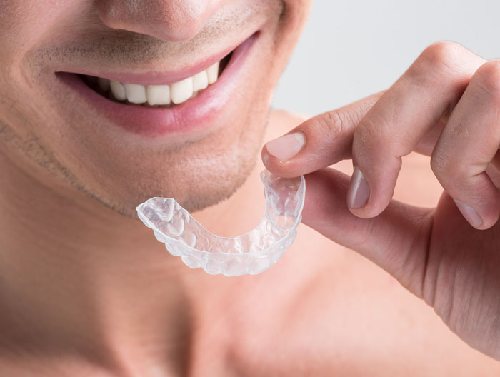 clear dental braces south croydon