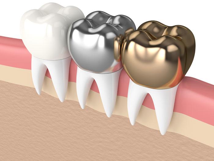 dental crown south croydon