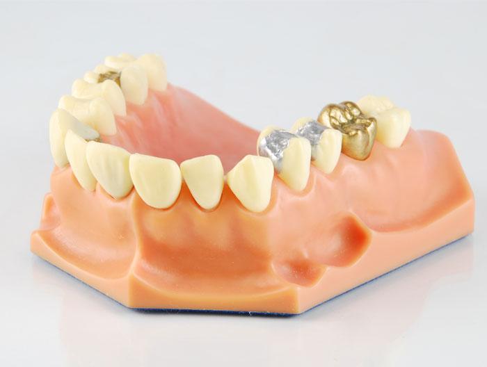 after care for dental crown
