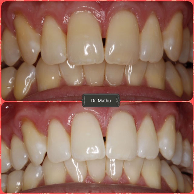 Teeth Whitening Smile Gallery