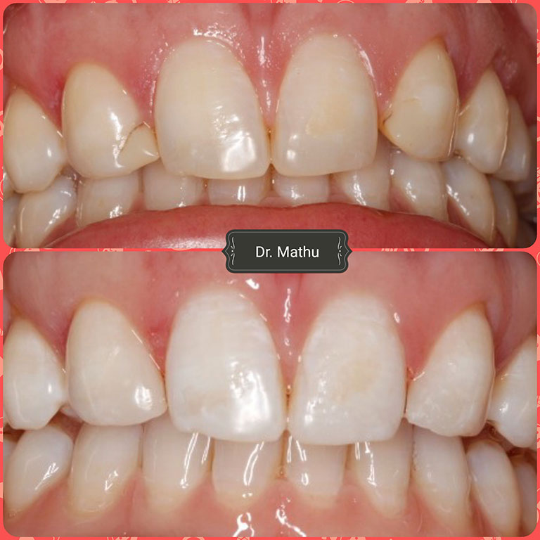 Teeth Whitening 2 Smile Gallery