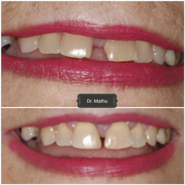 Composite Dental Bonding Smile Gallery
