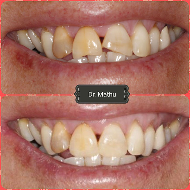 Tooth Reshaping Smile Gallery