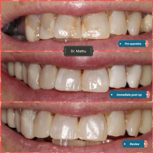 Teeth Reshaping Treatment