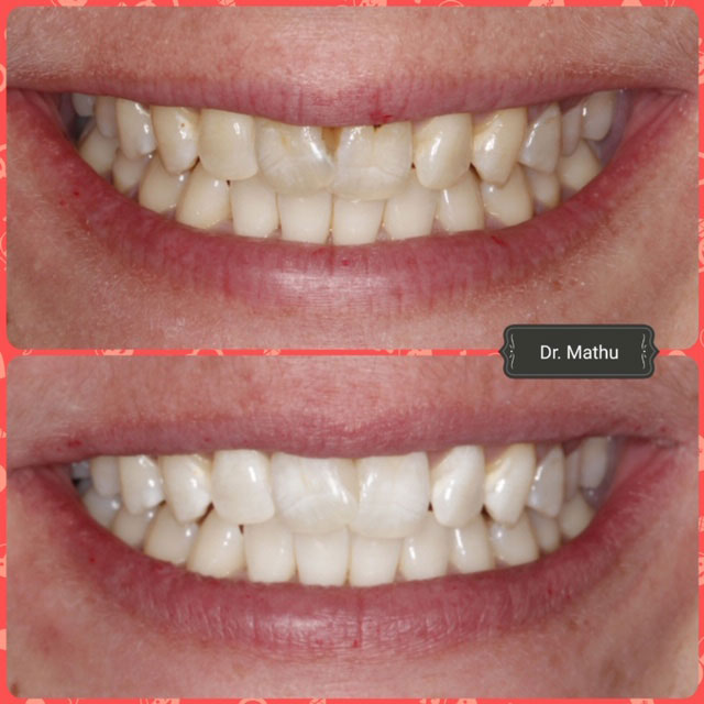 Teeth Whitening South Croydon