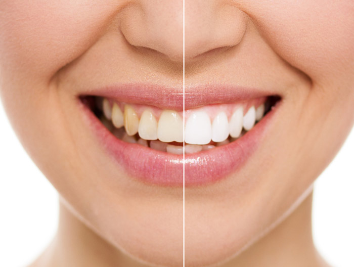 Teeth whitening in South Croydon