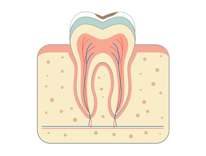 Root Canal Treatment Shirley Park Dental