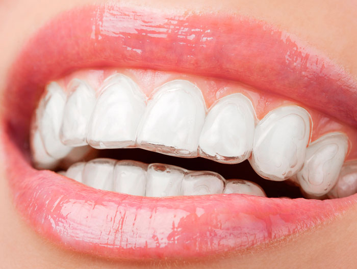 Invisalign South Croydon