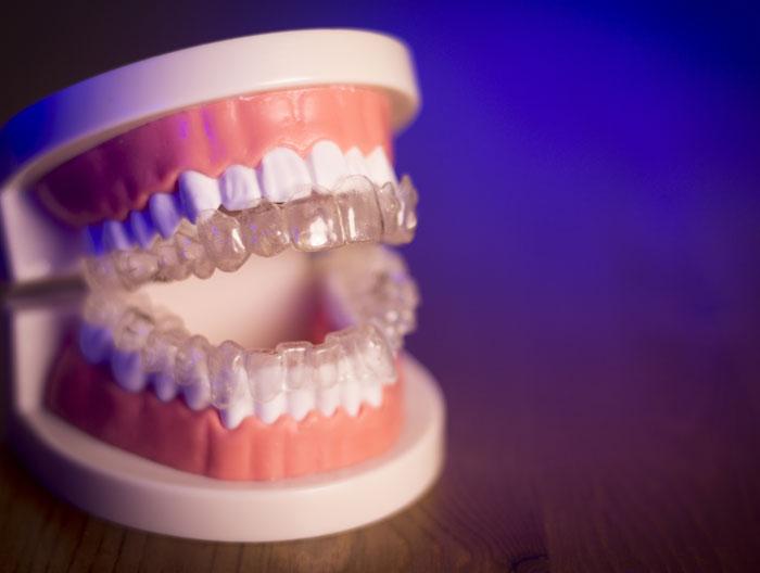 clean dental dentures