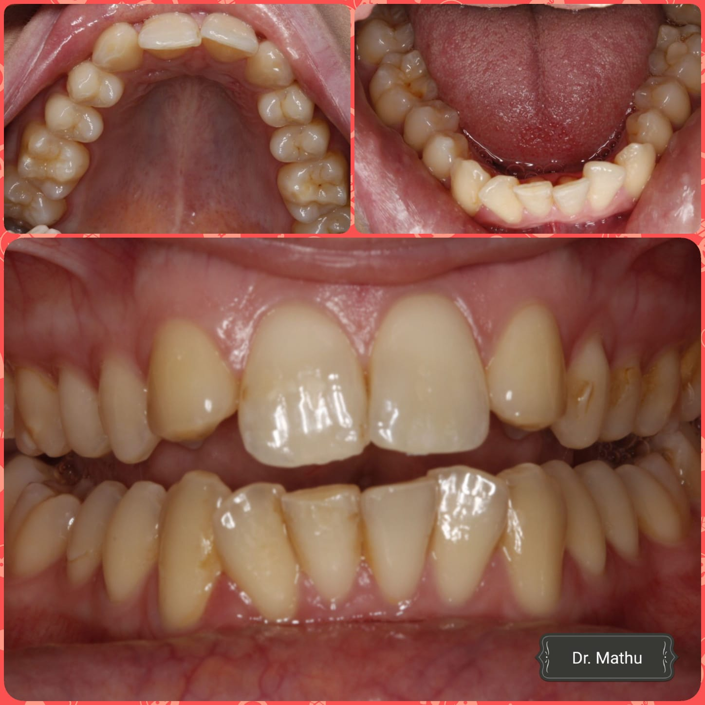 teeth straightening south croydon