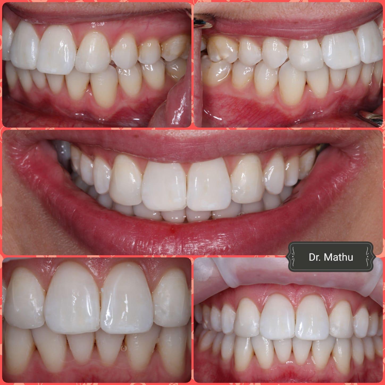 teeth whitening south croydon